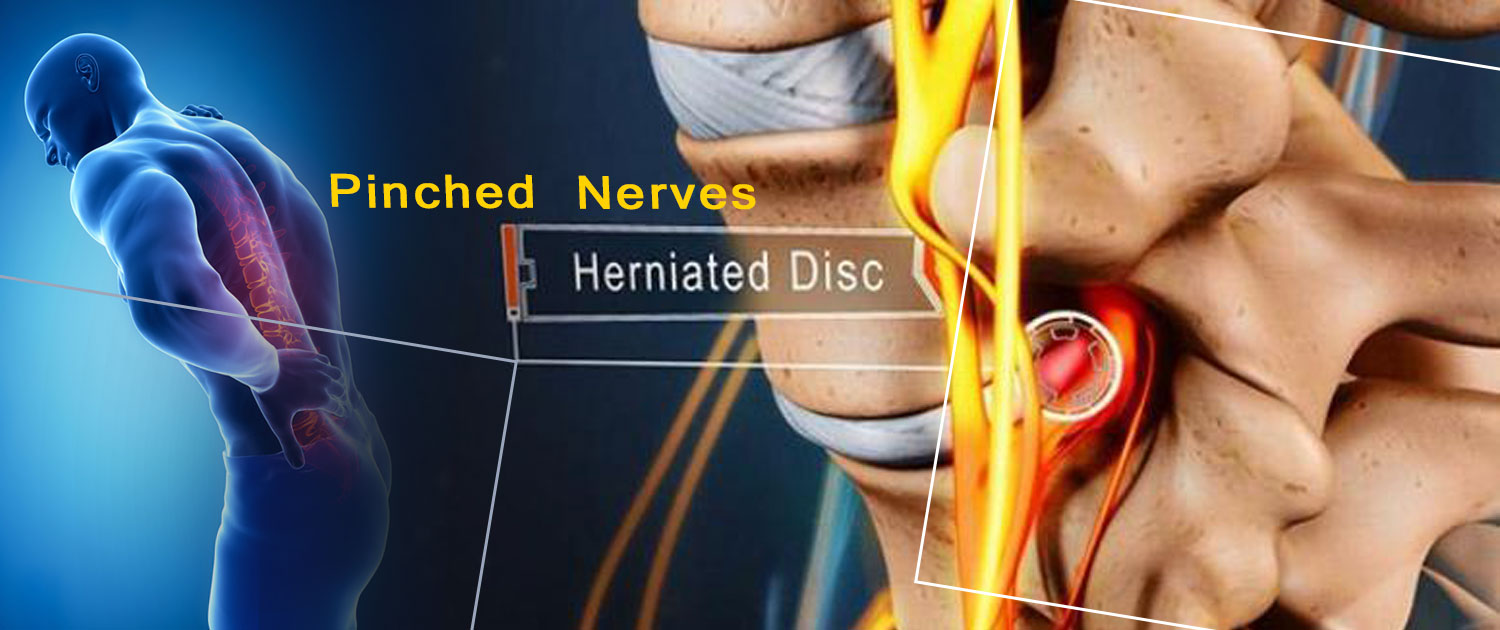 Herniated disc and nerves